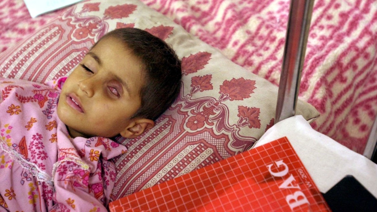 Four-year-old Alla Saleem, who suffers from a tumor in her eye, lies on her bed as she waits for medication Monday, January 15, 2001, at the Gazwan Children's Hospital in the southern Iraq town of Basra, about 60 kilometers (37 miles) from the border with Kuwait. Iraqi authorities claim that about 300 tons of bombs with depleted uranium were used by the allied forces during the Gulf War bombing campaign, and this is responsible for the increase of cancer cases in the area. According to Doctor Jawal Al-Ali, chief cancer consultant of the Basra teaching hospital and member of the Royal College of physicians in London, the cases have multiplied by 12 since 1991. (AP Photo/Enric Marti)